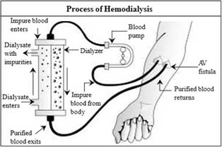 Dialysis information in Filipino