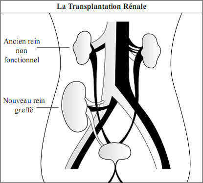 Kidney and its Function in French Language