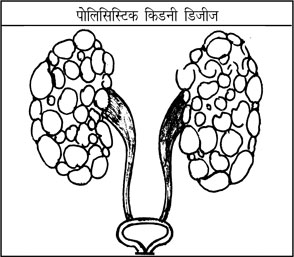 Kidney In Hindi