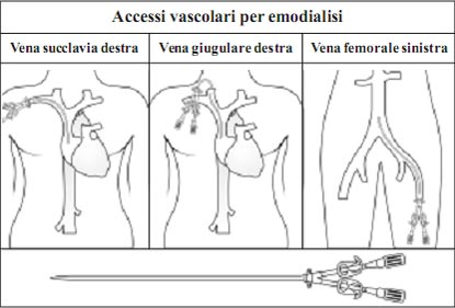 Kidney and its Function in Italian Language