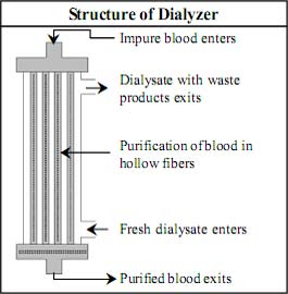 Structure of Dialyzer
